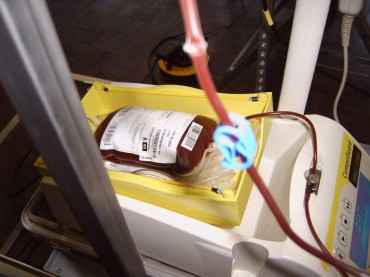 Ein mit Blut gefüllter Beutel während der Blutabnahme. By User:MartinD, edited by Mattes (Own work) [CC-BY-2.5], via Wikimedia Commons