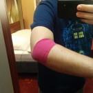 Druckverband um meinen Arm, um Blutungen nach der Stammzellenspende zu vermeiden.